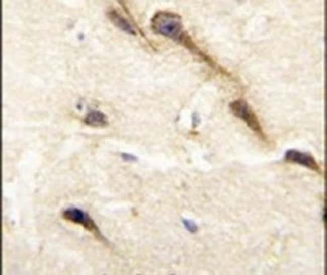 CYP26B1 Rabbit anti-Human, Polyclonal, Invitrogen 400 µL; Unconjugated