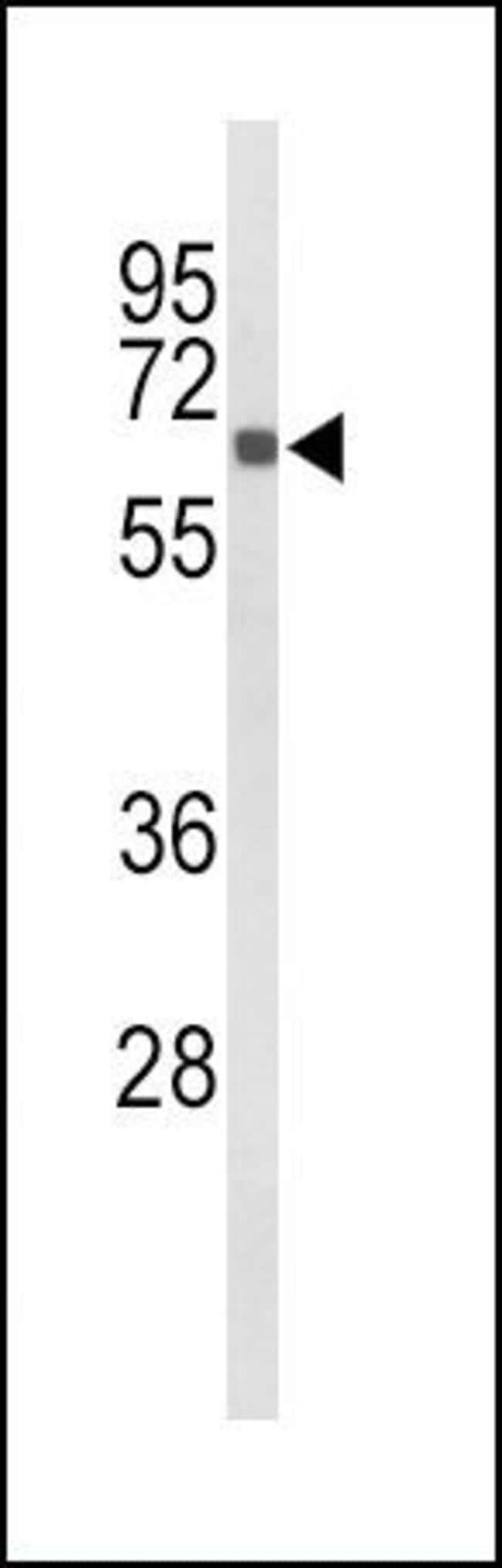 CYP27B1 Rabbit anti-Human, Rat, Polyclonal, Invitrogen 200µL; Unconjugated