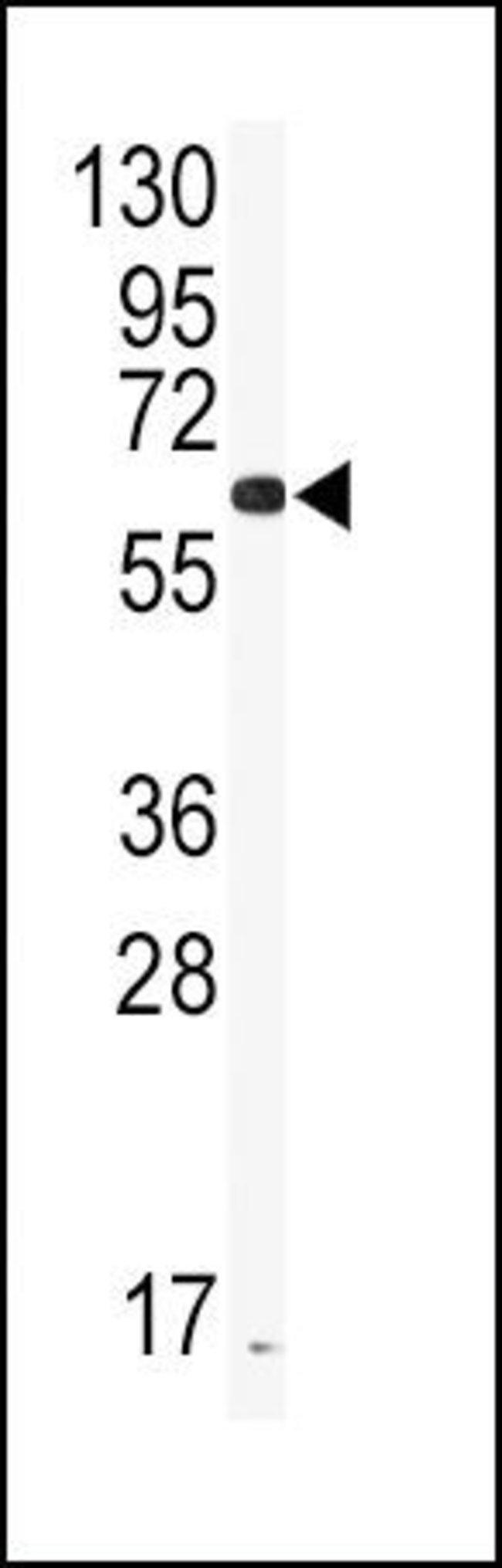 CYP2J2 Rabbit anti-Human, Polyclonal, Invitrogen 400 µL; Unconjugated