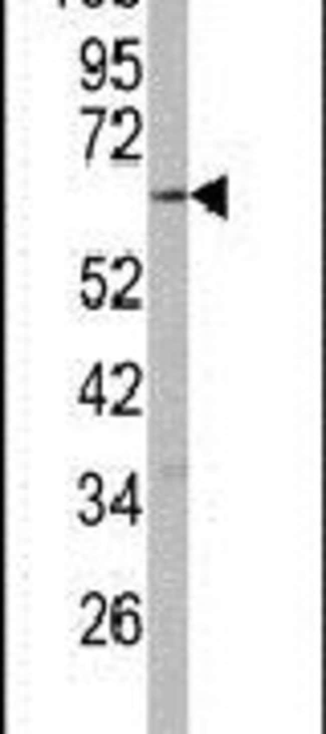 CYP2R1 Rabbit anti-Human, Polyclonal, Invitrogen 400 µL; Unconjugated
