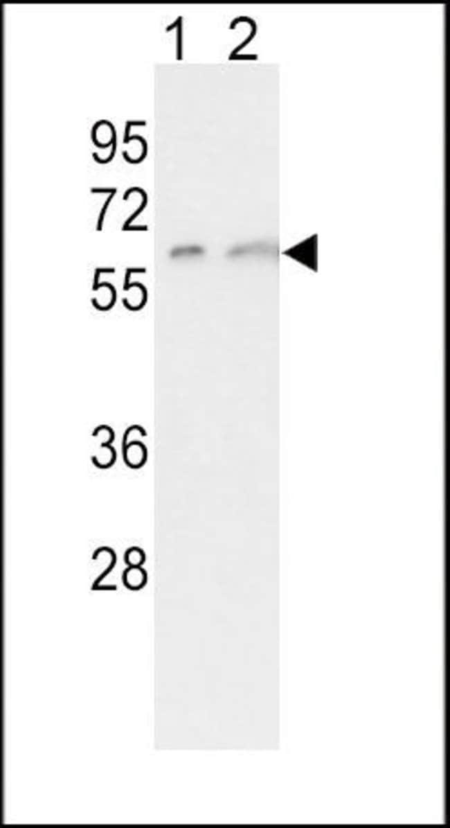 CYP7A1 Rabbit anti-Human, Polyclonal, Invitrogen 400 µL; Unconjugated
