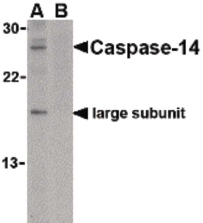 Caspase 14 Rabbit anti-Human, Mouse, Rat, Polyclonal, Invitrogen 100 µg;