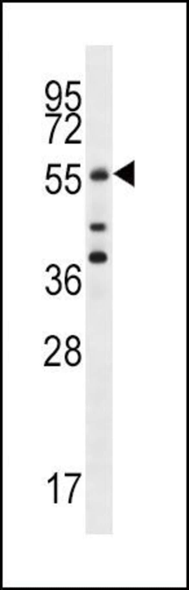 Cdc25A Rabbit anti-Human, Polyclonal, Invitrogen 400 µL; Unconjugated