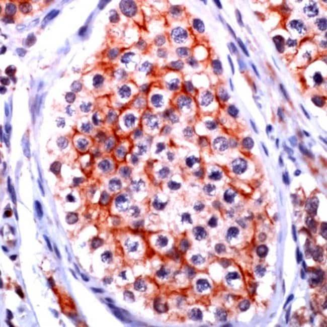 Claudin 11 Rabbit anti-Human, Polyclonal, Invitrogen 1 mL; Unconjugated:Antibodies