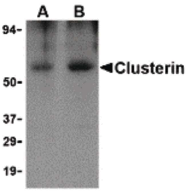 Apolipoprotein J Rabbit anti-Human, Polyclonal, Invitrogen 100 µg;