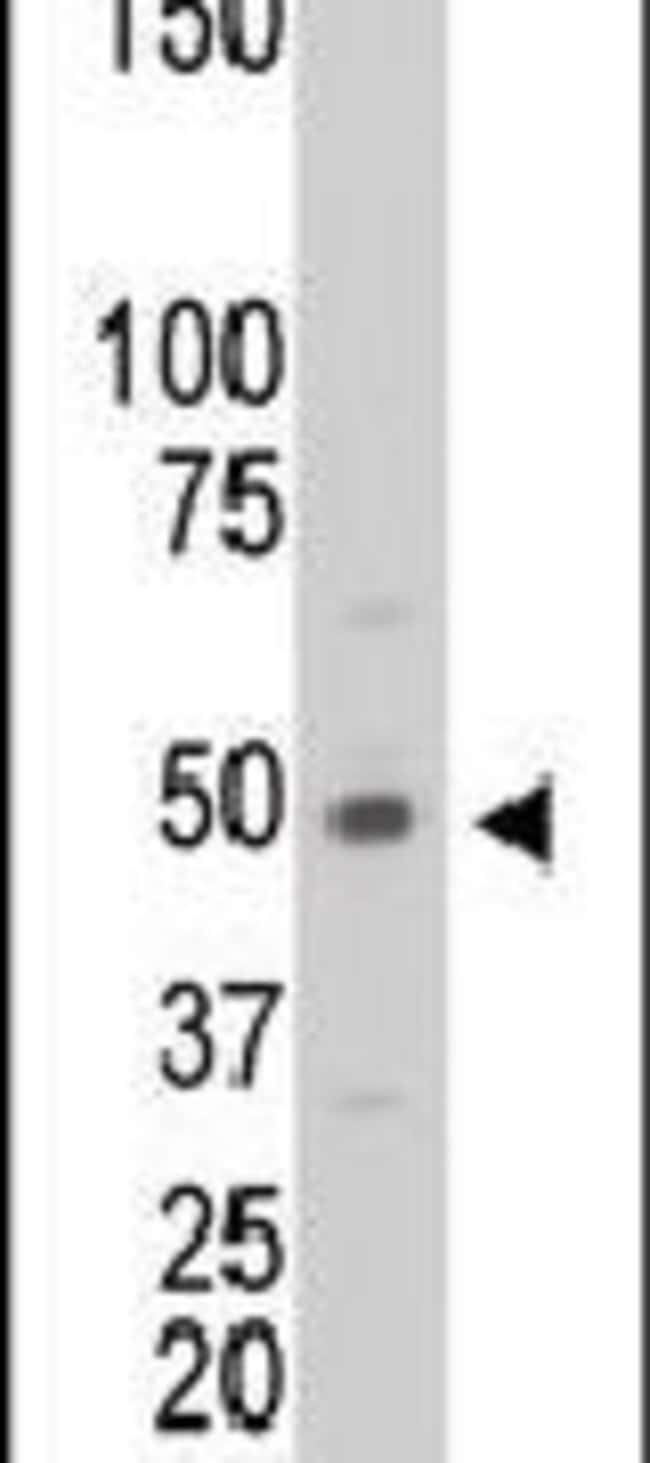 Creatine Kinase MB Rabbit anti-Human, Polyclonal, Invitrogen 400 µL;