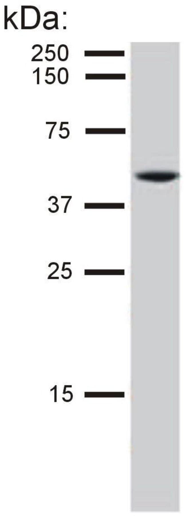 Cytokeratin 8 Mouse anti-Bovine, Human, Ovine, Porcine, Clone: C-51, Invitrogen