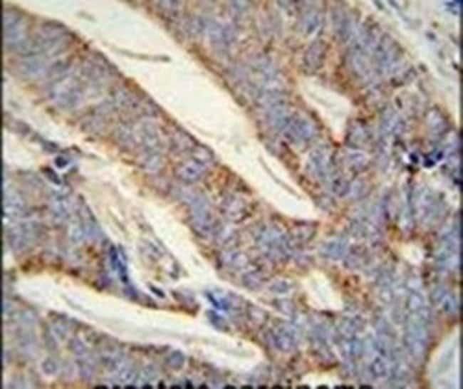 DACT1 Rabbit anti-Human, Mouse, Polyclonal, Invitrogen 400 µL; Unconjugated