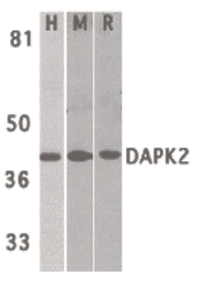DAPK2 Rabbit anti-Human, Mouse, Rat, Polyclonal, Invitrogen 100 µg;