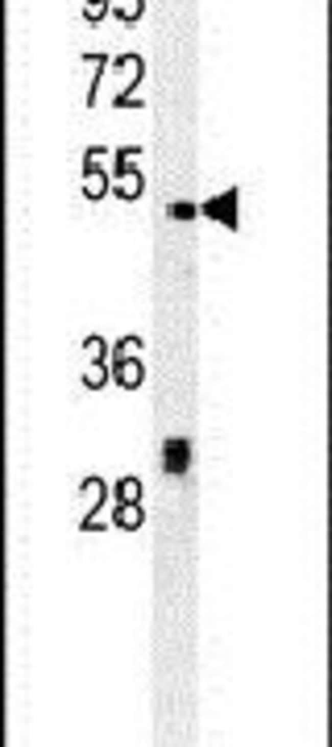 DSCC1 Rabbit anti-Human, Polyclonal, Invitrogen 400 µL; Unconjugated