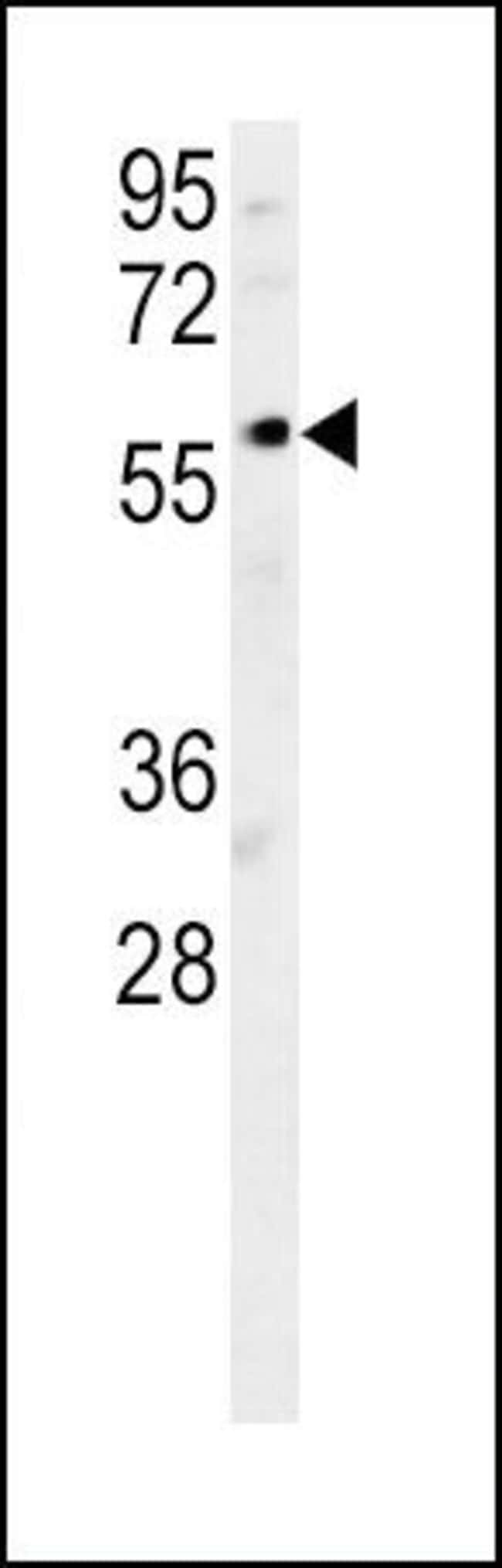 DCLRE1B Rabbit anti-Human, Mouse, Polyclonal, Invitrogen 400 µL; Unconjugated