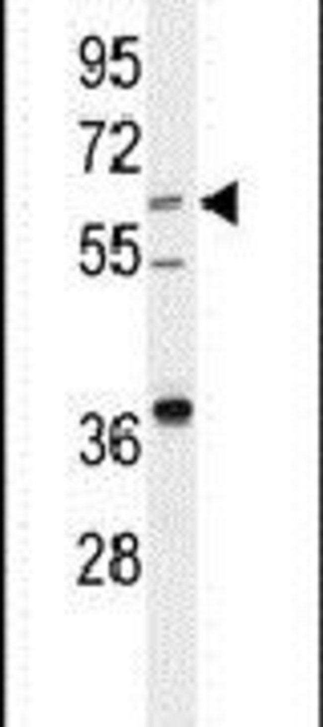 DHCR24 Rabbit anti-Human, Polyclonal, Invitrogen 400 µL; Unconjugated