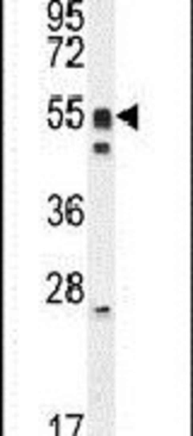 DMRTA1 Rabbit anti-Human, Mouse, Polyclonal, Invitrogen 400 µL; Unconjugated