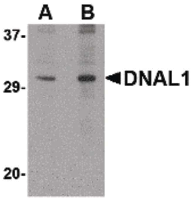DNAL1 Rabbit anti-Human, Mouse, Rat, Polyclonal, Invitrogen 100 µg;