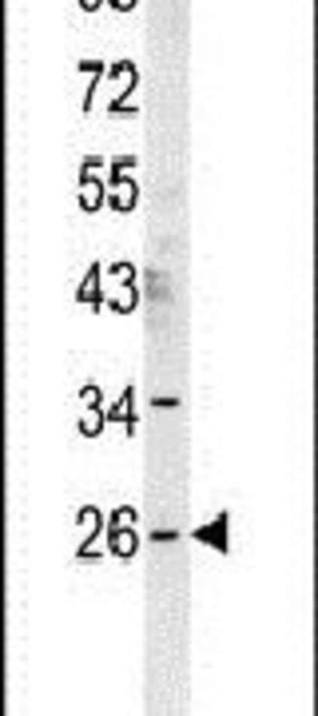 DNAJC8 Rabbit anti-Human, Mouse, Polyclonal, Invitrogen 400 µL; Unconjugated
