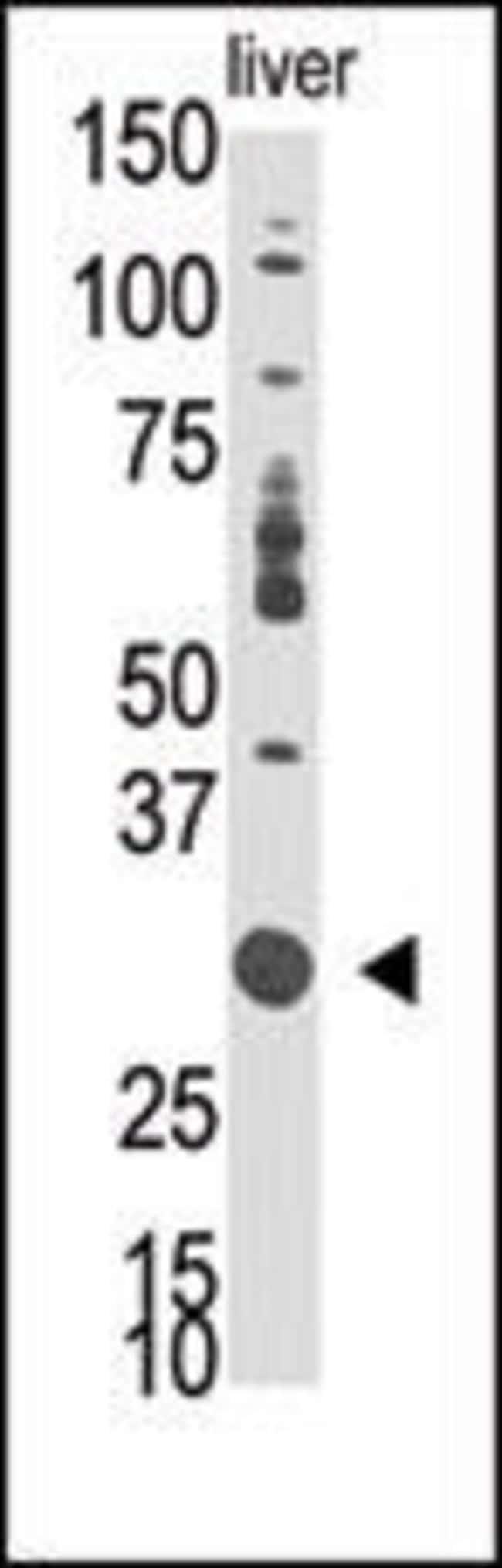 DOK5 Rabbit anti-Human, Mouse, Polyclonal, Invitrogen 400 µL; Unconjugated