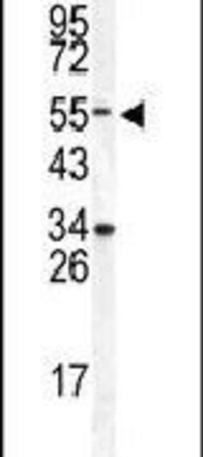 DONSON Rabbit anti-Human, Polyclonal, Invitrogen 400 µL; Unconjugated