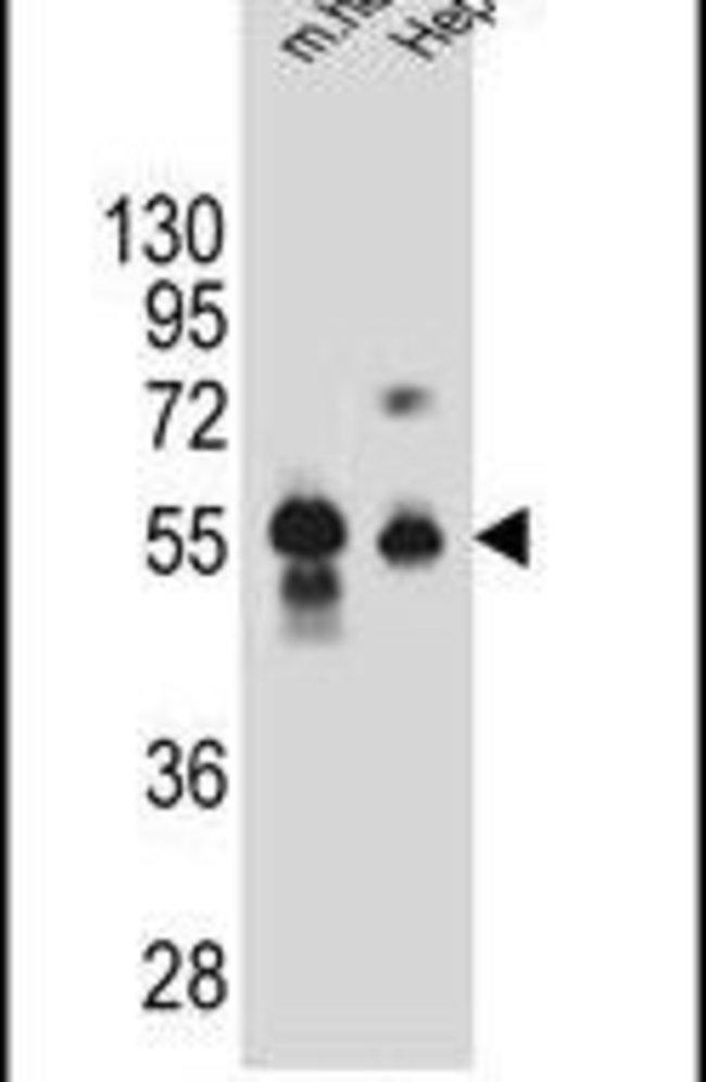 DPEP3 Rabbit anti-Human, Mouse, Polyclonal, Invitrogen 400 µL; Unconjugated