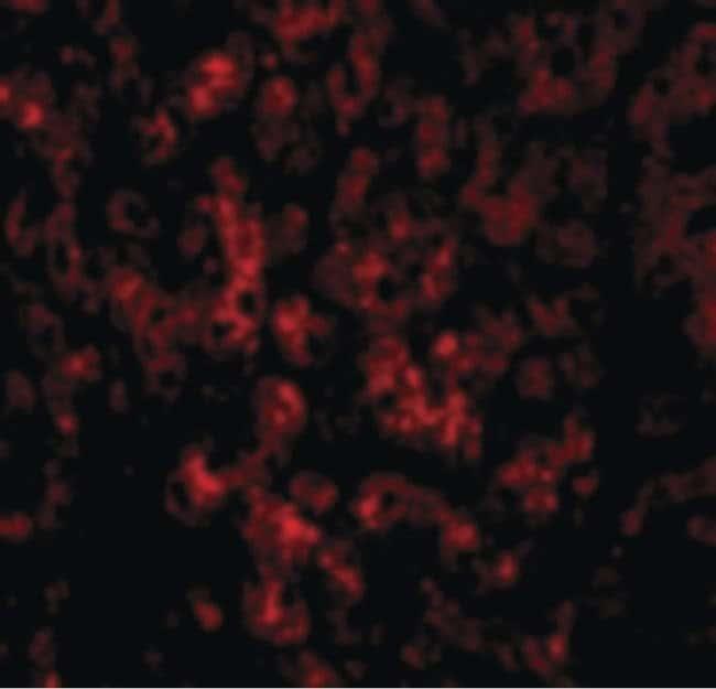 DRAM Rabbit anti-Human, Mouse, Rat, Polyclonal, Invitrogen 100 µg;