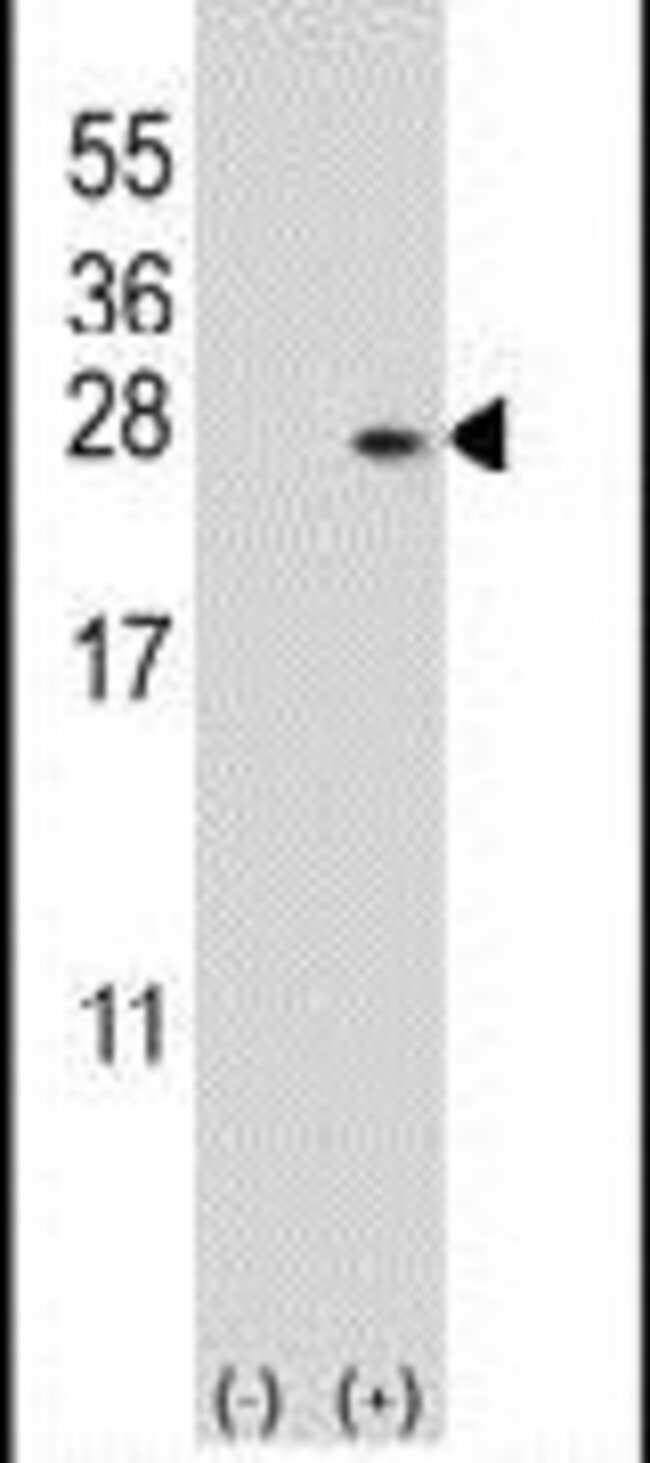 DUSP14 Rabbit anti-Human, Mouse, Polyclonal, Invitrogen 400 µL; Unconjugated