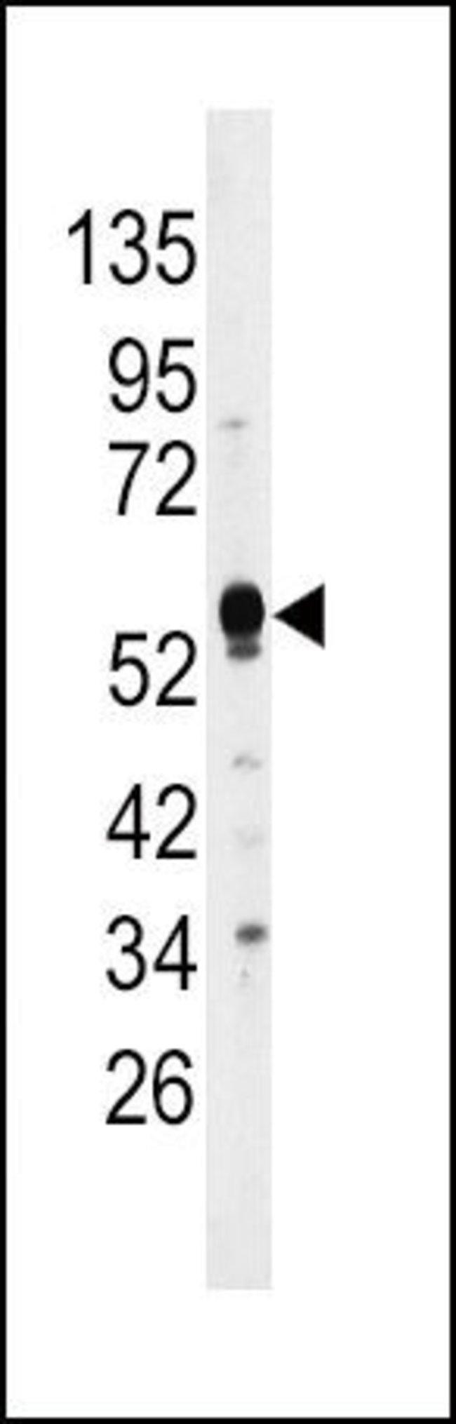 MKP2 Rabbit anti-Human, Mouse, Polyclonal, Invitrogen 400 µL; Unconjugated