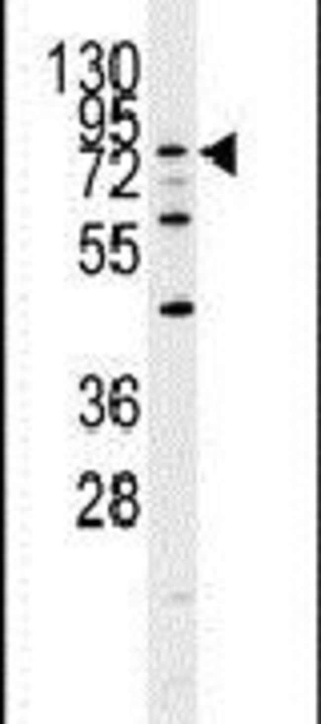 DYRK1A Rabbit anti-Human, Polyclonal, Invitrogen 400 µL; Unconjugated