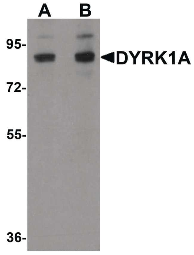 DYRK1A Rabbit anti-Human, Mouse, Rat, Polyclonal, Invitrogen 100 µg;