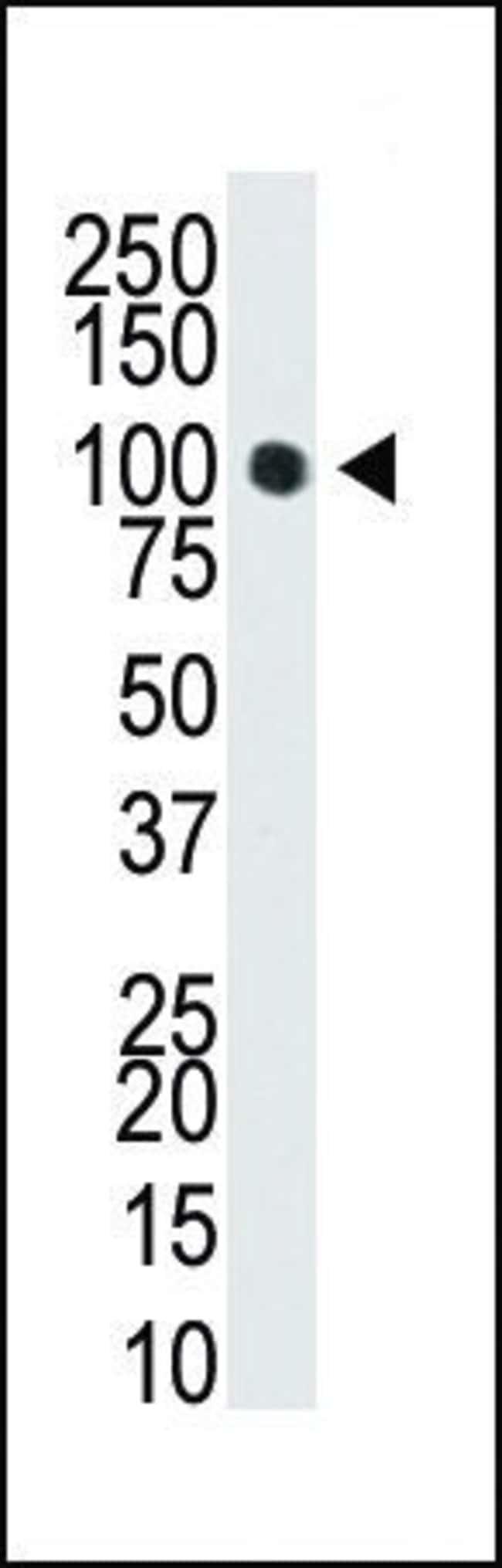 DNMT3A Rabbit anti-Human, Polyclonal, Invitrogen 400 µL; Unconjugated