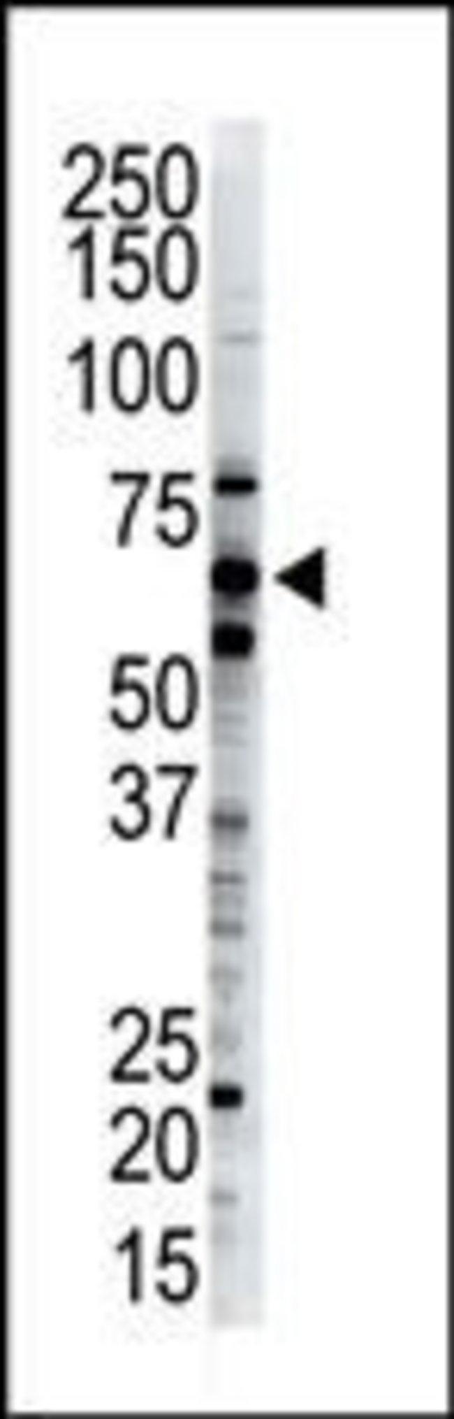 Dsk2 Rabbit anti-Human, Polyclonal, Invitrogen 400 µL; Unconjugated