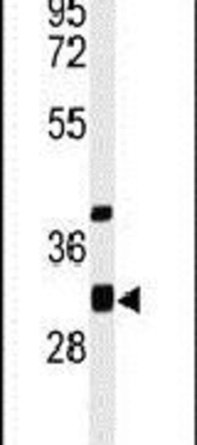 ECHDC1 Rabbit anti-Human, Mouse, Polyclonal, Invitrogen 400 µL; Unconjugated