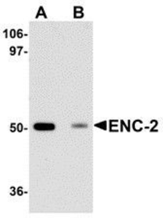 ENC1 Chicken anti-Human, Mouse, Rat, Polyclonal, Invitrogen 100 µg;