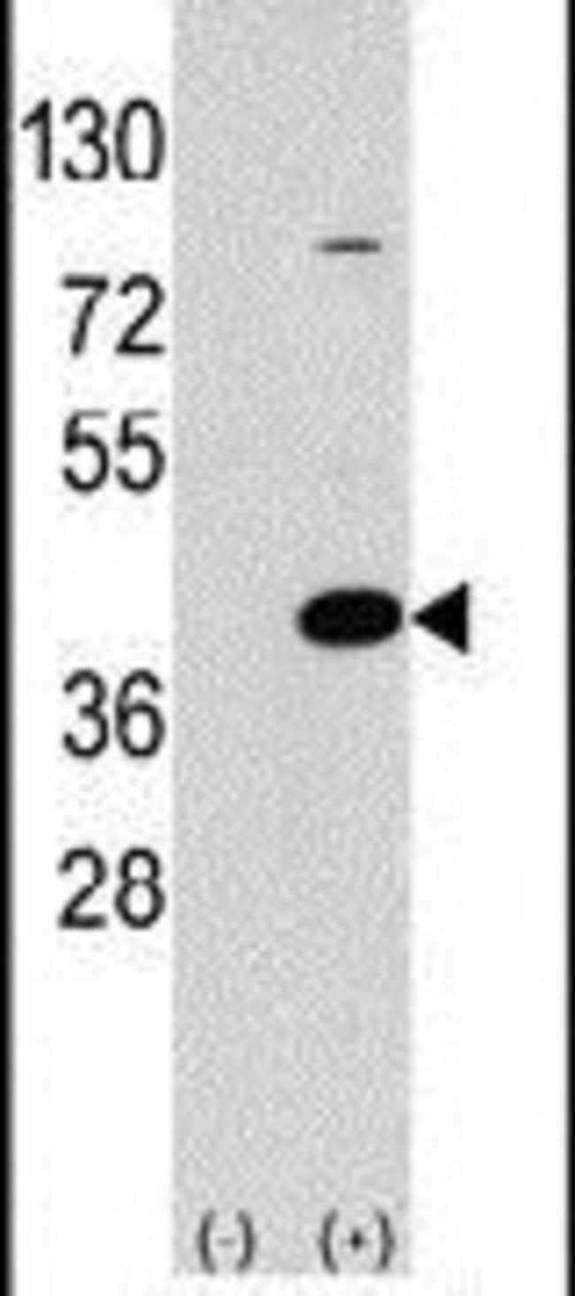EPM2A Rabbit anti-Human, Polyclonal, Invitrogen 400 µL; Unconjugated