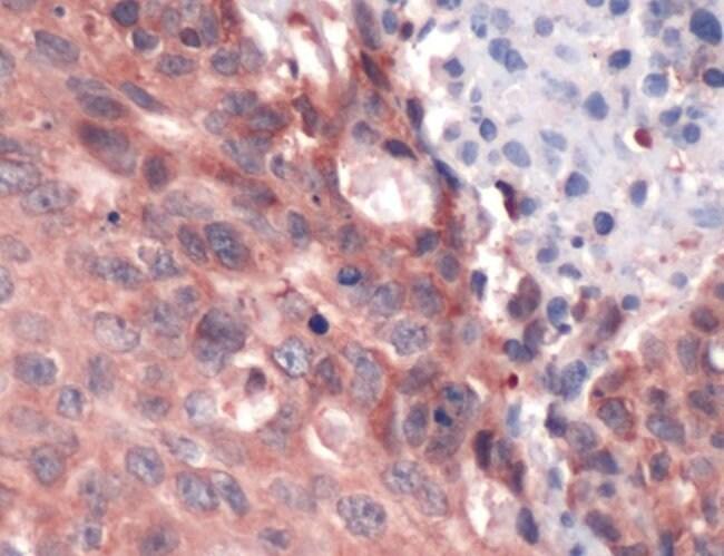 ERK1 Rabbit anti-Human, Polyclonal, Invitrogen 1 mL; Unconjugated:Antibodies
