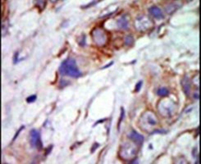 ERK5 Rabbit anti-Human, Polyclonal, Invitrogen 400 µL; Unconjugated
