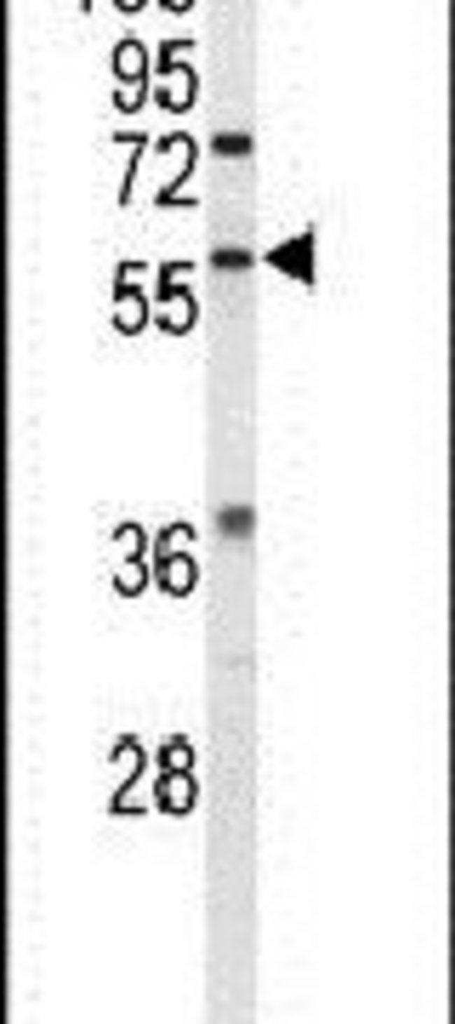ESRRB Rabbit anti-Human, Polyclonal, Invitrogen 400 µL; Unconjugated