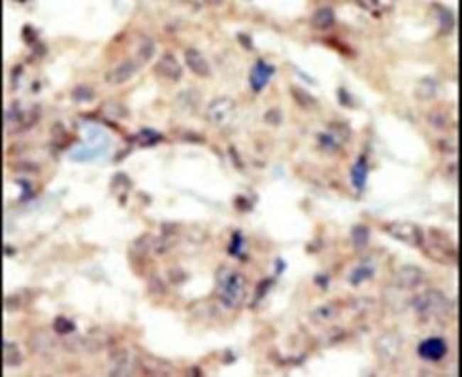 EphB6 Rabbit anti-Human, Polyclonal, Invitrogen 400 µL; Unconjugated