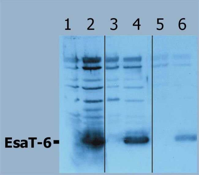 Mycobacterium tuberculosis ESAT-6 Rabbit anti-Bacteria, Polyclonal, Invitrogen