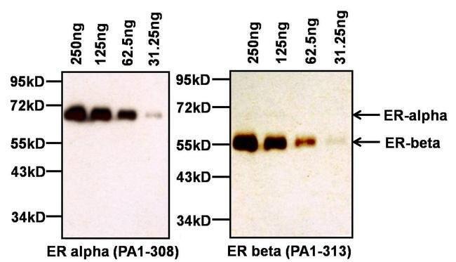 Estrogen Receptor alpha Rabbit anti-Human, Rat, Polyclonal, Invitrogen