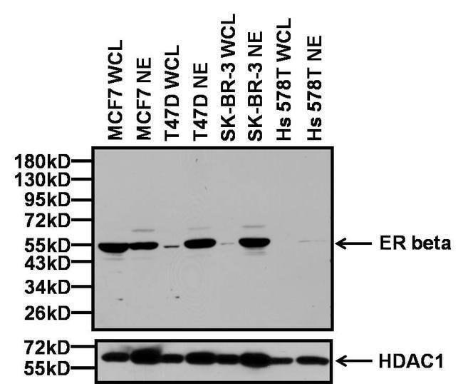 Estrogen Receptor beta Rabbit anti-Human, Mouse, Rat, Polyclonal, Invitrogen