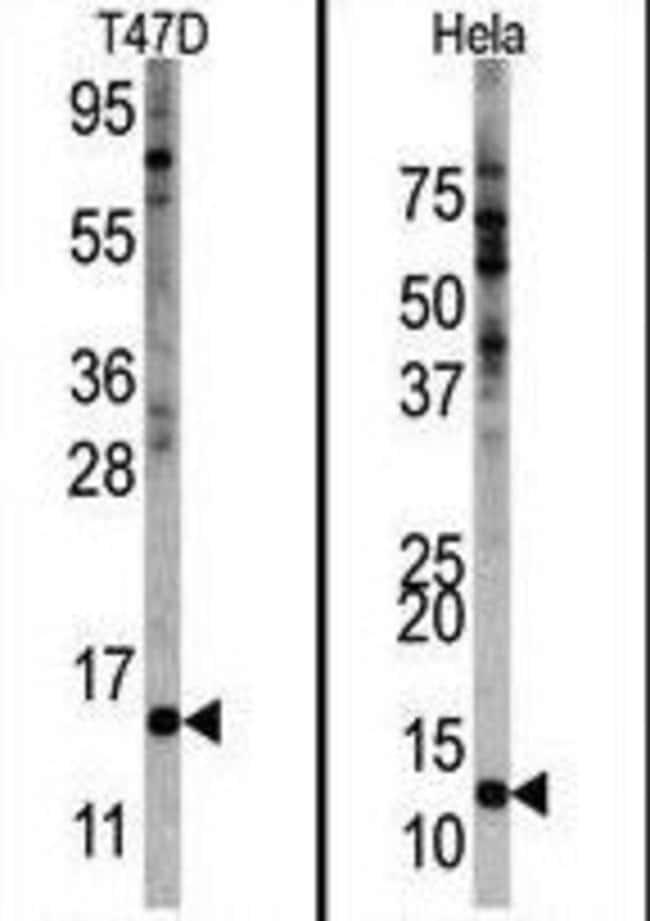 FAU Rabbit anti-Human, Polyclonal, Invitrogen 400 µL; Unconjugated