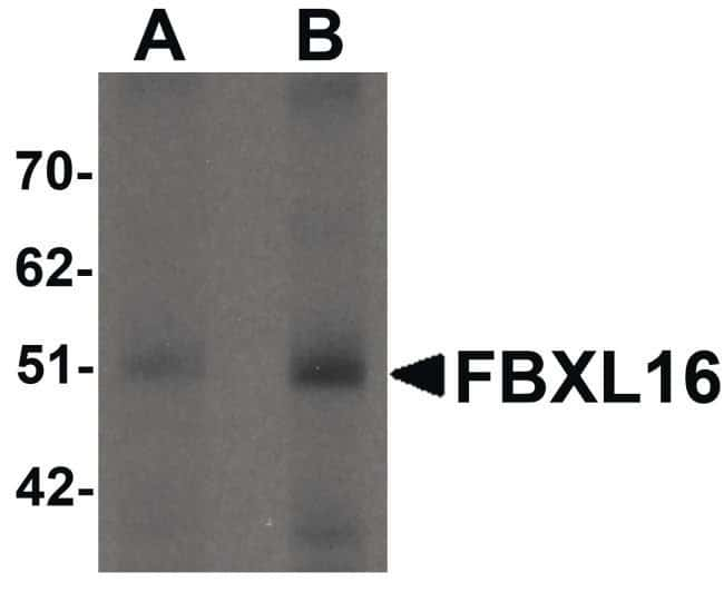 FBXL16 Rabbit anti-Human, Mouse, Rat, Polyclonal, Invitrogen 100 µg;