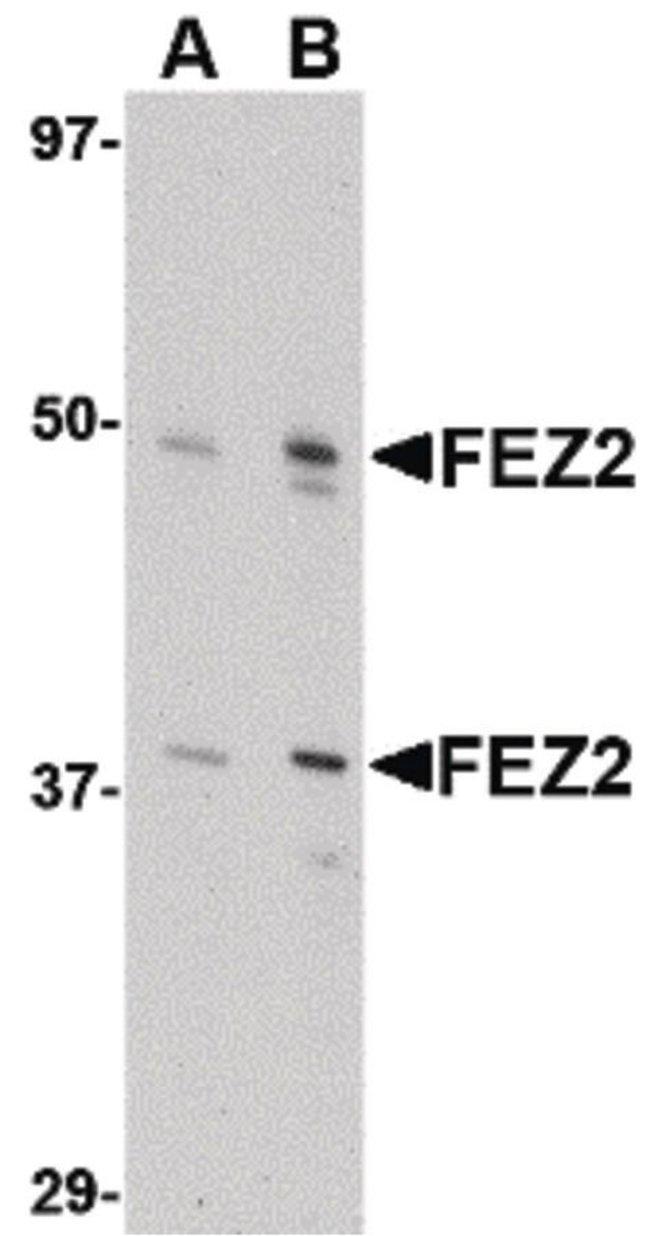 FEZ2 Rabbit anti-Human, Mouse, Rat, Polyclonal, Invitrogen 100 µg;
