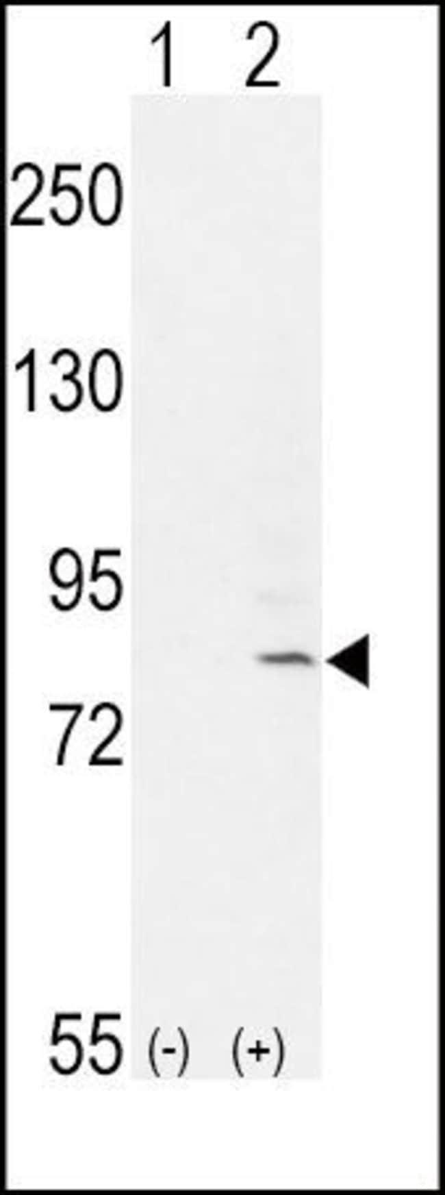 FGFR1 Rabbit anti-Human, Polyclonal, Invitrogen 400 µL; Unconjugated