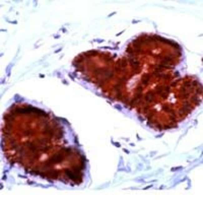 FHIT, Polyclonal, Invitrogen 1mL; Unconjugated:Antibodies