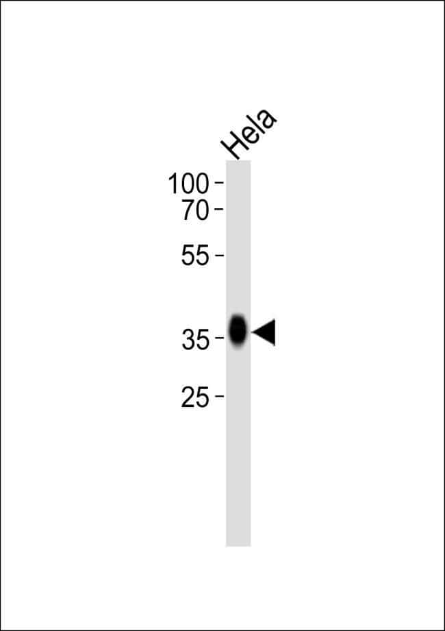 Folate Receptor alpha Rabbit anti-Human, Polyclonal, Invitrogen 400 µL;
