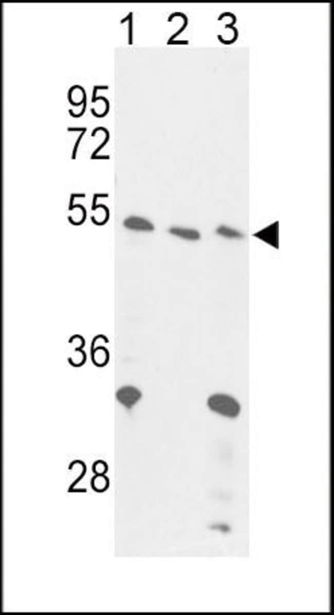FOXP3 Rabbit anti-Human, Mouse, Polyclonal, Invitrogen 400 µL; Unconjugated