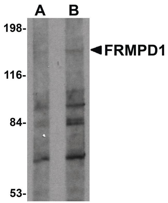 FRMPD1 Rabbit anti-Human, Polyclonal, Invitrogen 100 µg; Unconjugated