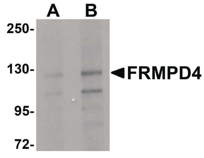 FRMPD4 Rabbit anti-Human, Polyclonal, Invitrogen 100 µg; Unconjugated