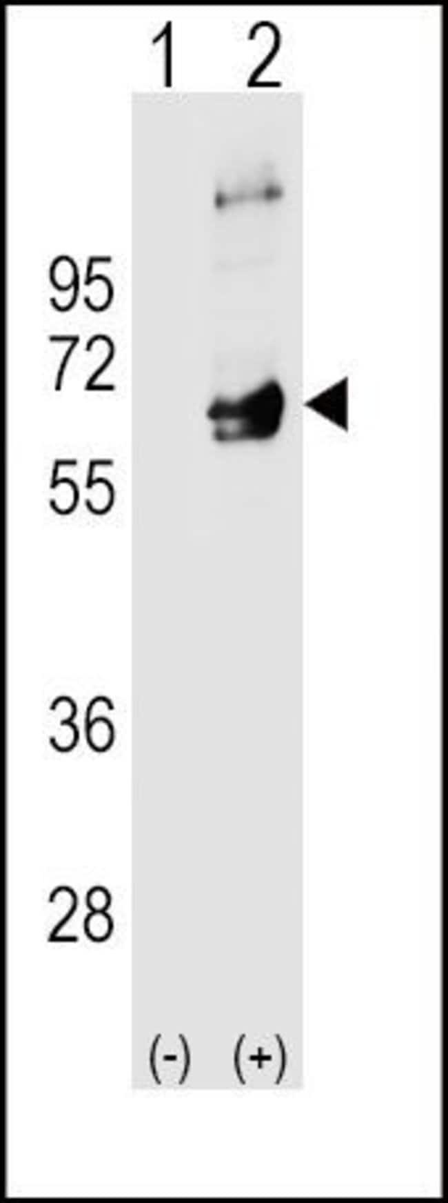 Fyn Rabbit anti-Human, Mouse, Polyclonal, Invitrogen 400 µL; Unconjugated