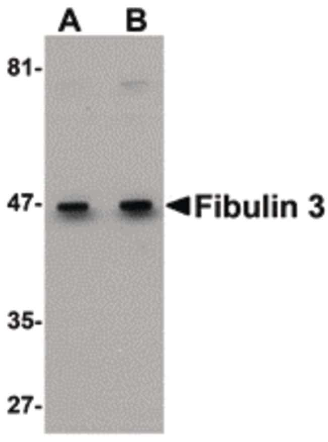 Fibulin 3 Rabbit anti-Human, Polyclonal, Invitrogen 100 µg; Unconjugated